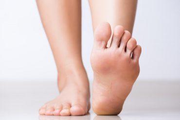 5 ways to avoid tinea